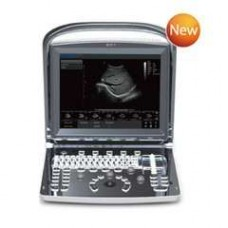 Ultrasound  CHISON ECO1