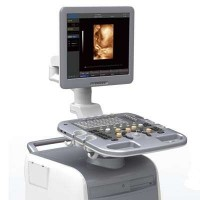 Color Doppler i3 CHISON